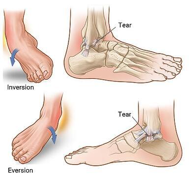 Ankle Injuries edited